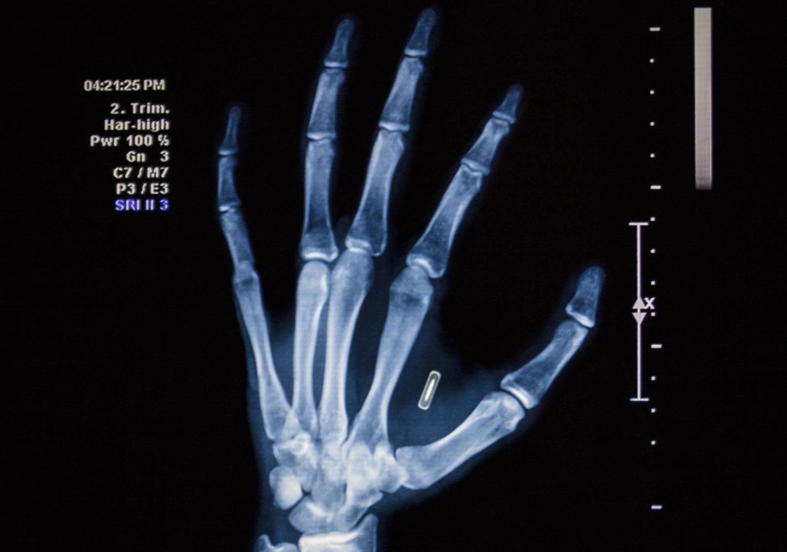 Rfid Chip Implantat Pflicht Deutschland